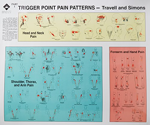 Trigger Point of Pain: Wall Charts de Brand: Lippincott Williams Wilkins