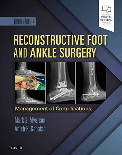 Reconstructive Foot and Ankle Surgery: Management of Complications de Elsevier - Health Sciences Division