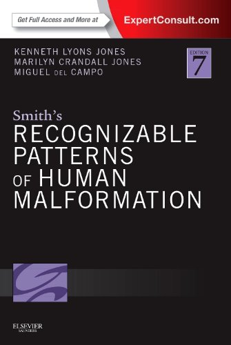 Smith's Recognizable Patterns of Human Malformation: Expert Consult - Online and Print de Saunders