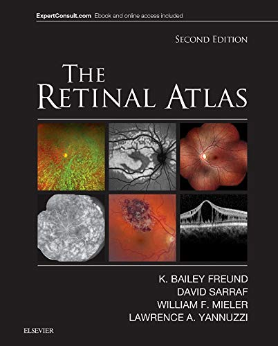 The Retinal Atlas de Elsevier